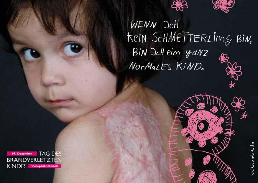 Tag des brandverletzten Kindes 5